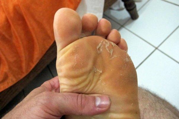micoza-picior